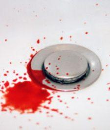 Кровоточат десны при чистке зубов