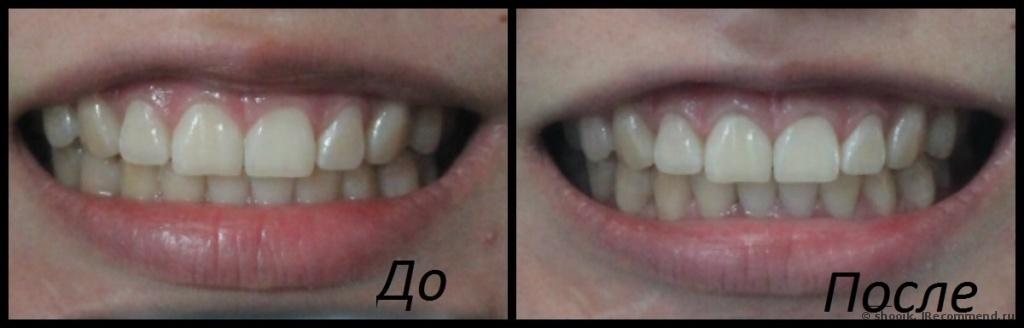 Отбеливание зубов активированным углем: фото до и после