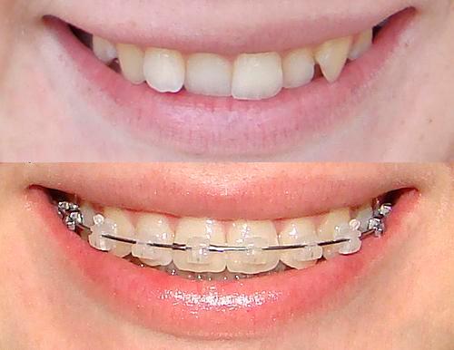 Сапфировые брекеты: фото до и после