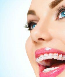 Сколько нужно носить брекеты чтобы выровнять зубы?