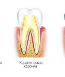 Виды коронок на зубы: какие лучше выбрать?