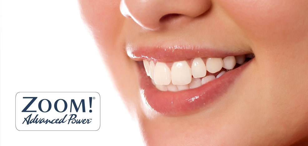 Технология Zoom для отбеливания зубов
