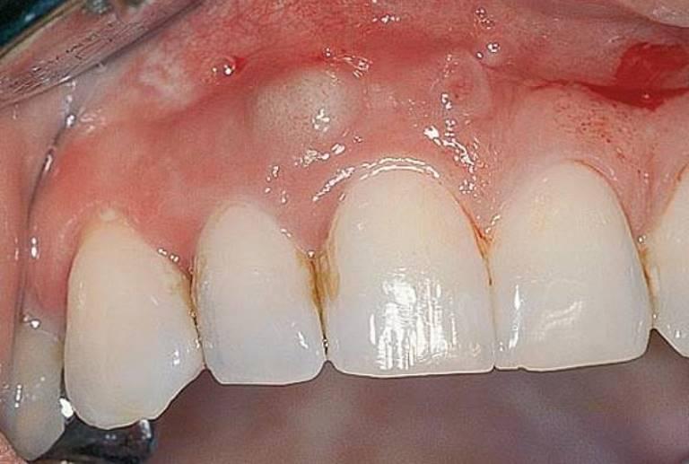 Абсцесс зуба - фото