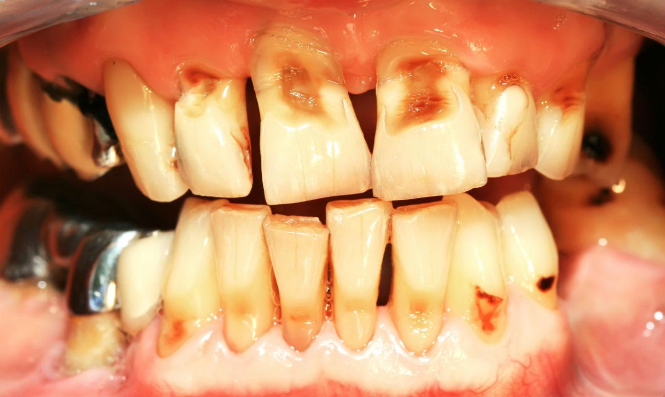 Эрозия эмали зубов - фото