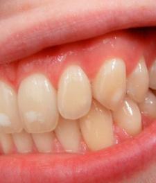 Гиперплазия зубов - фото