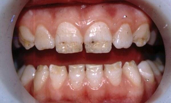 Гипоплазия зубов - фото