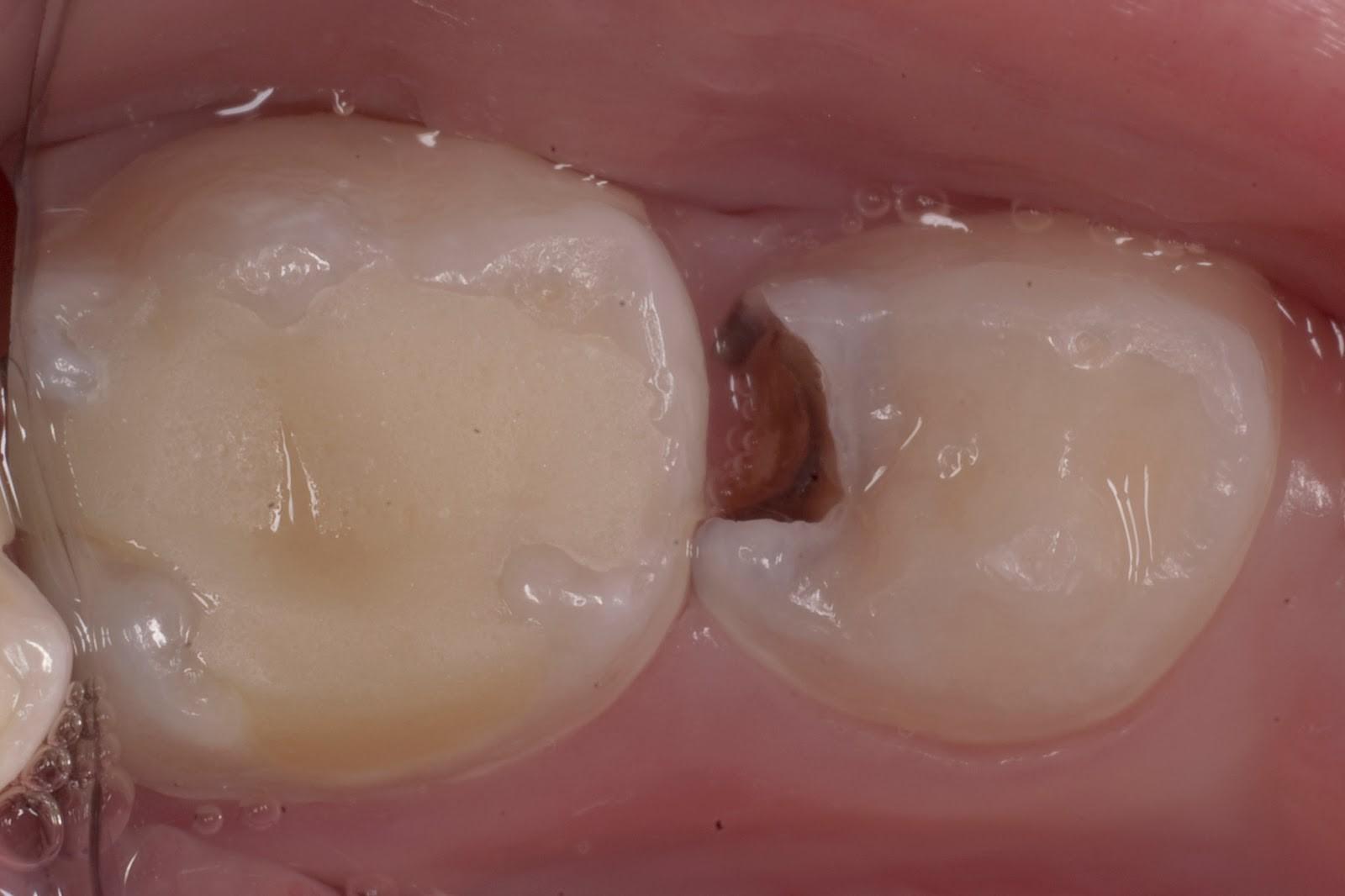 Как выглядит средний кариес зубов?