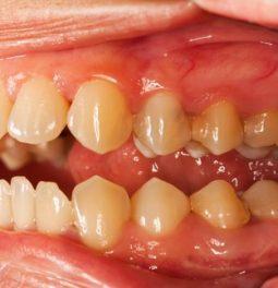 Как выглядит зубной налет?