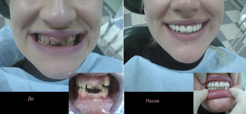 Кривые зубы: фото до и после лечения