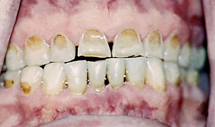 Некроз зубов - фото