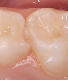 Средний кариес молочных зубов - фото