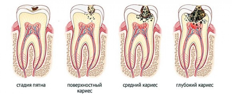 запах изо рта наличие паразитов