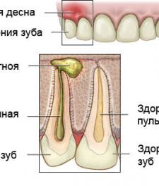Воспаление корня зуба - схема