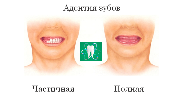Фото адентии зубов (частичной и полной формы)