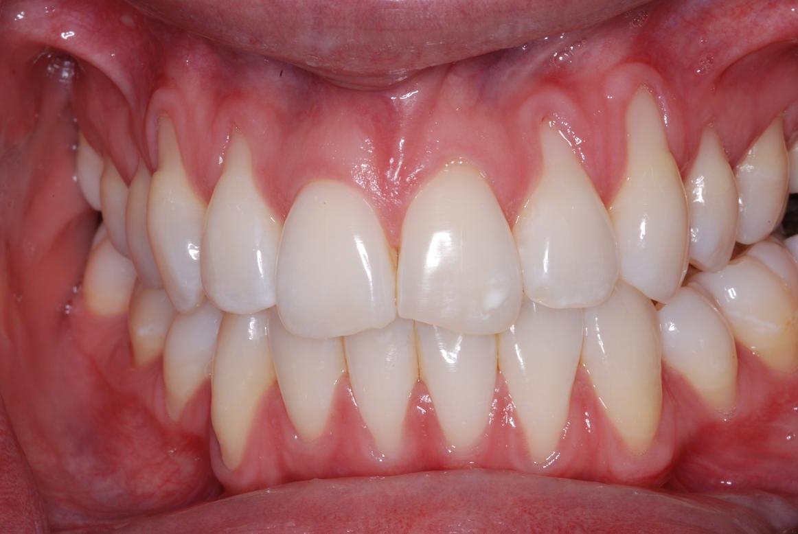Что делать, если оголилась шейка зуба?