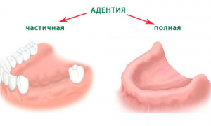 Как выглядит адентия зубов?