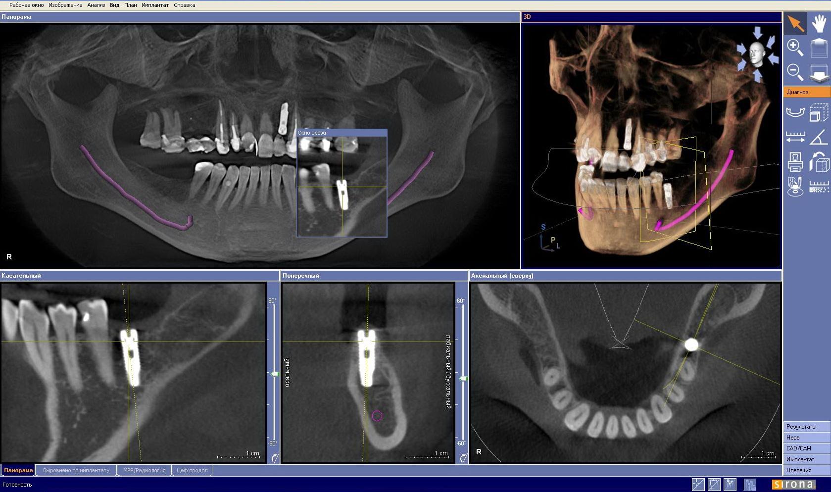 Компьютерная 3D томография зубов