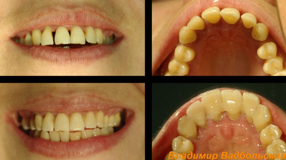 Шинирование зубов: фото до и после