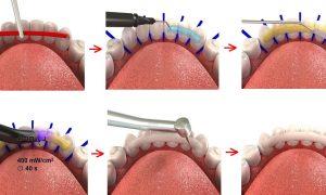Проведение процедуры шинирования в стоматологии