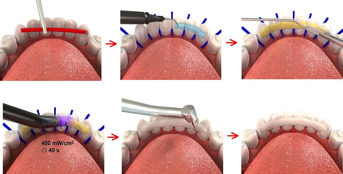 Шинирование зубов: что это, фото до и после, отзывы