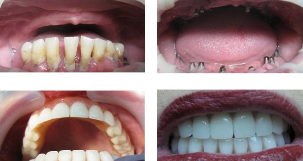 Базальная имплантация зубов: фото до и после