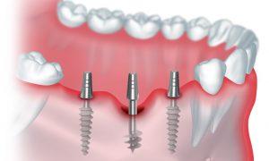 Схематическое изображение базальной имплантации