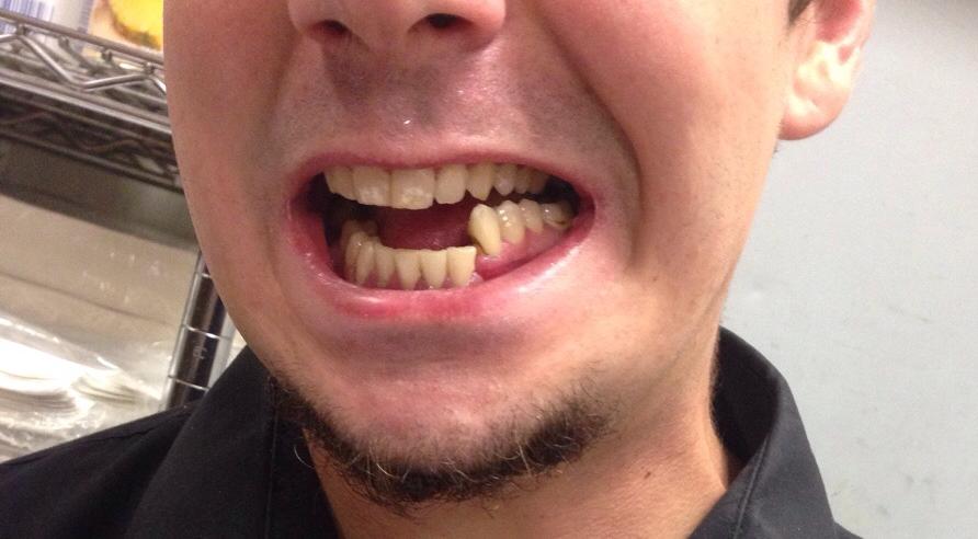 Как выглядит перелом нижней челюсти?