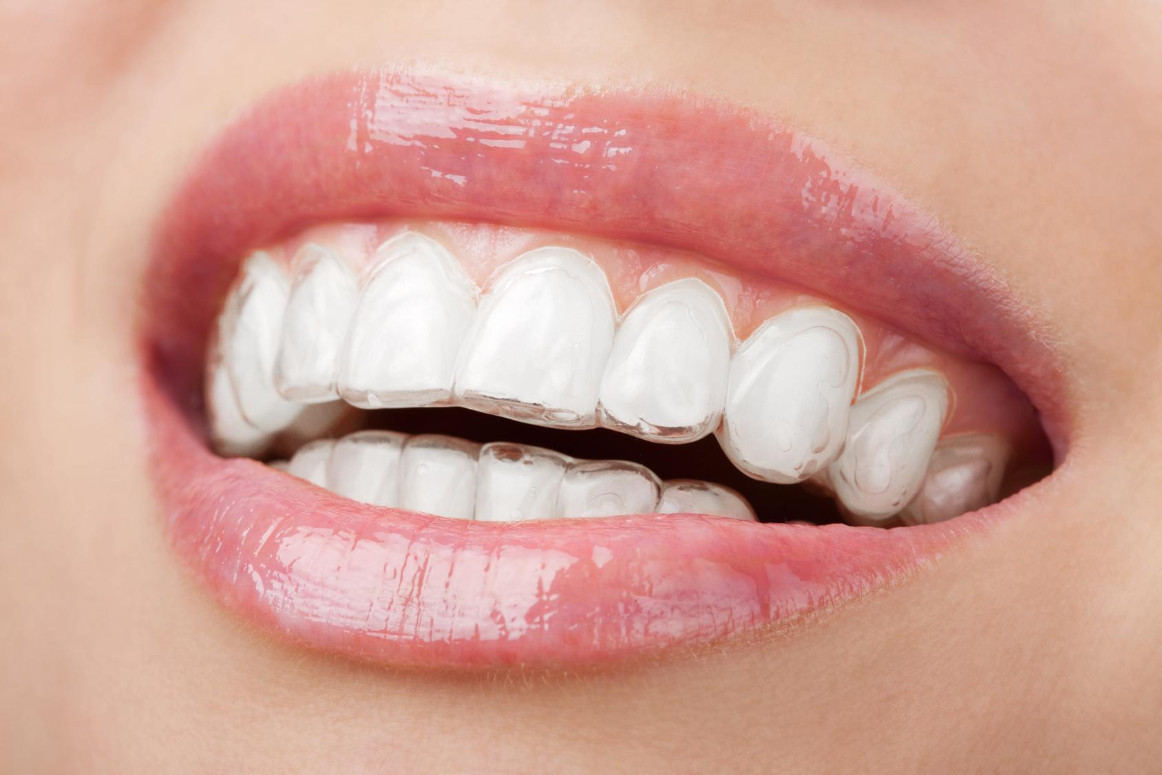 Капа на зубы - фото