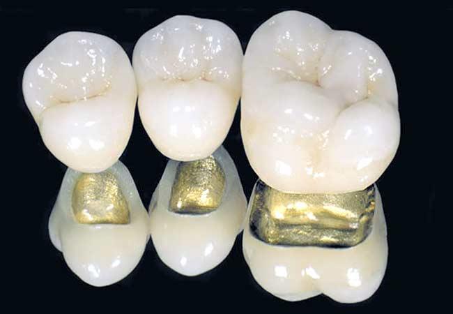 Коронка из металлокерамики на зуб