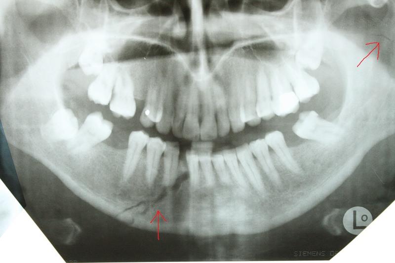 Перелом челюсти на рентгеновском снимке
