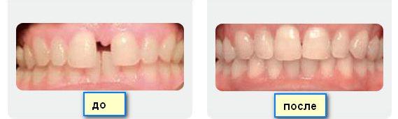 Промежуток между зубами - до и после