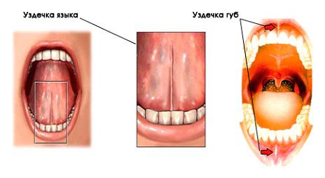 Расположение уздечки верхней и нижней губа, а также языка