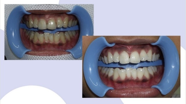 сколько стоит отбеливание зубов в красноярске