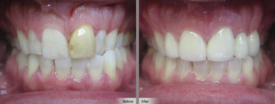 Циркониевые коронки: фото до и после установки
