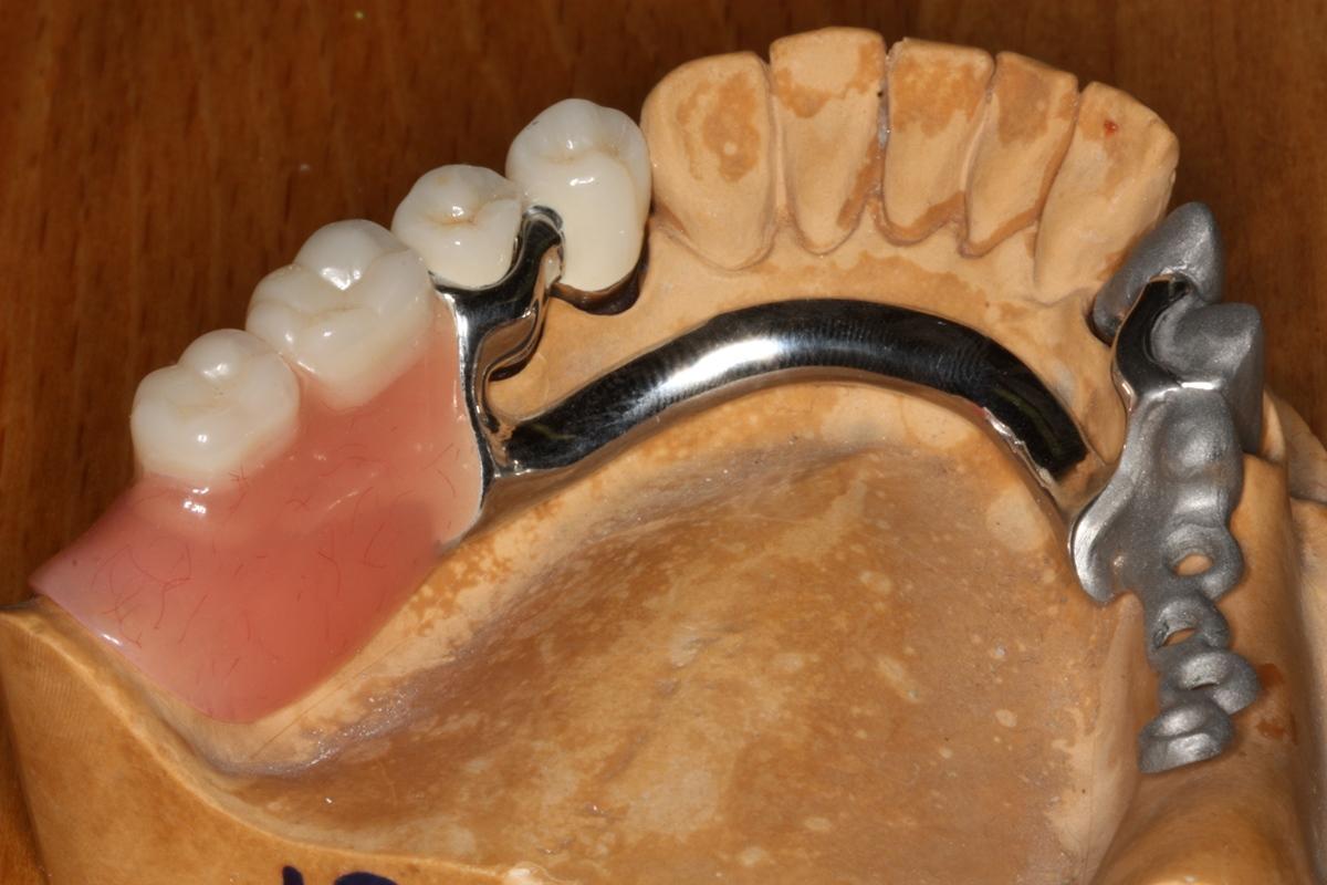 Как выглядит бюгельный зубной протез?