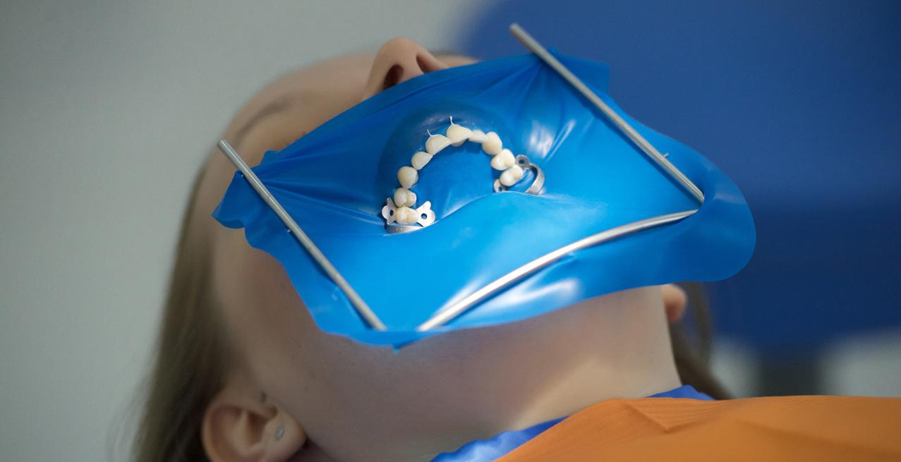 Коффердам в стоматологии - что это такое?