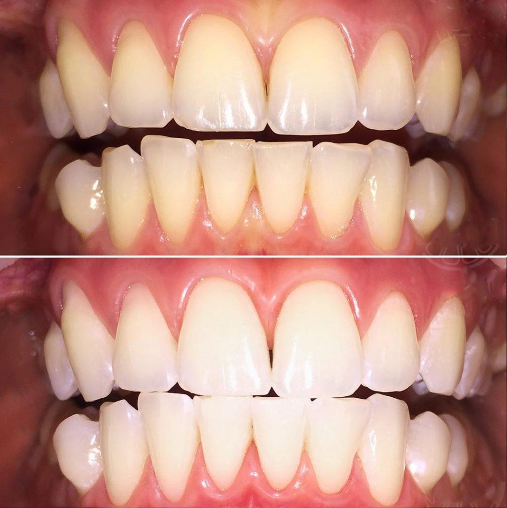 Эффект после лазерного отбеливания - фото до и после