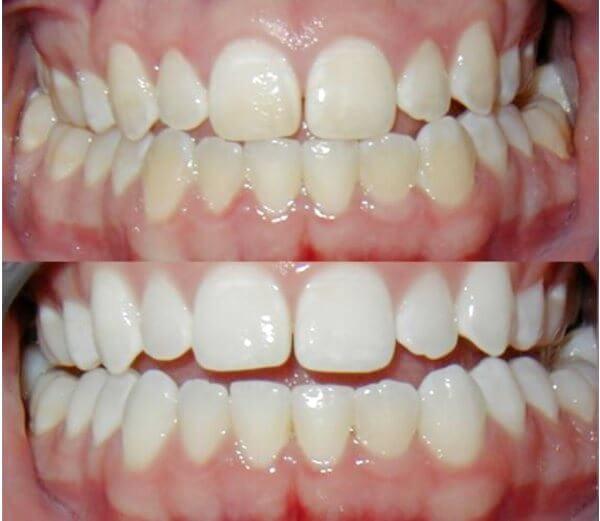 Эффект отбеливания зубов с помощью соды