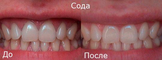 Отбеливание зубов содой: фото до и после