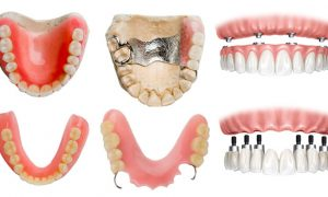 Зубное протезирование и его виды