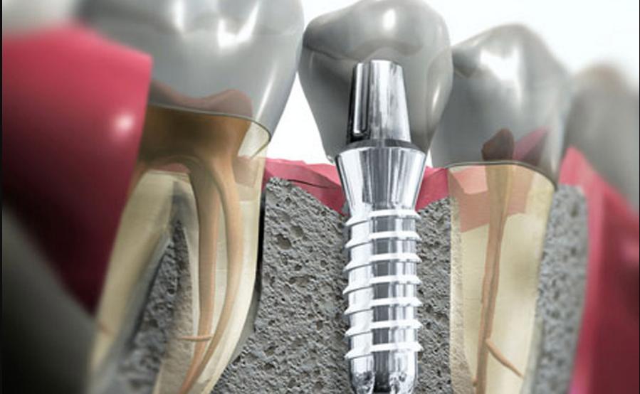 Фото импланта после удаления одного зуба