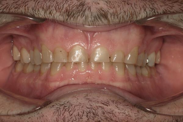 Как выглядит стираемость зубов?