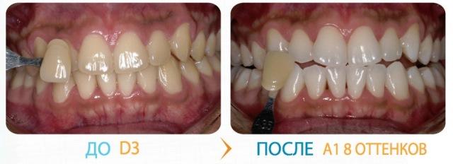 Отбеливание зубов Klox: фото до и после
