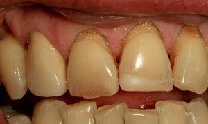Наддесневой зубной камень