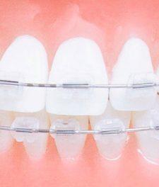 Пластиковые брекеты - фото