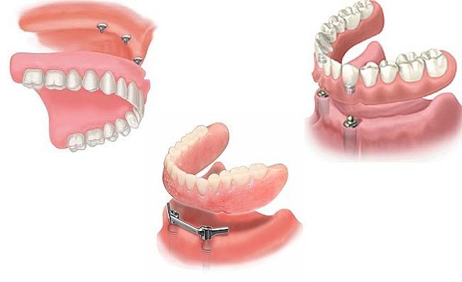 Как выглядят покрывные зубные протезы?