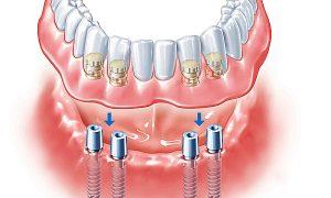 Покрывной протез зубов