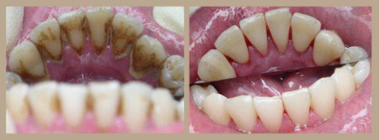 Фото до и после профессиональной чистки зубов