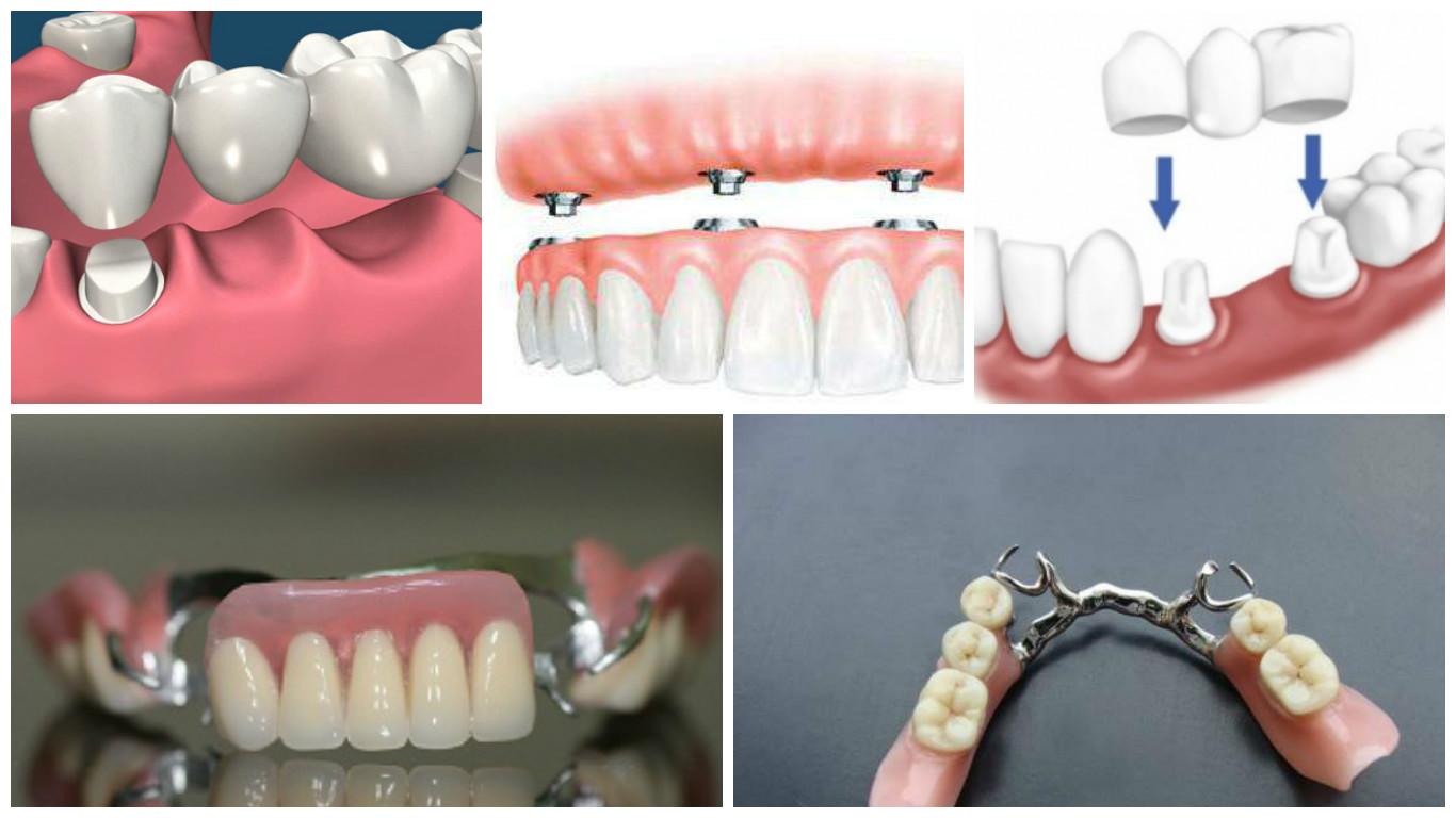какие бывают протезы для зубов и цены место