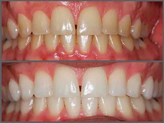 Фотоотбеливание зубов - фото до после процедуры